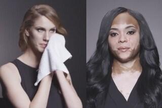 """""""Non nasconderti, nessuno è perfetto"""", due donne rivelano sul web le loro imperfezioni con un video"""