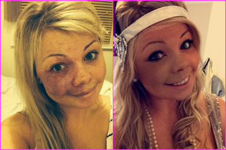 Amy ha una voglia sul volto ma sfida i bulli e posta un selfie su FB (FOTO)