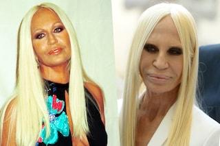 Prima e dopo il botulino: le facce distrutte delle celebrities (FOTO)