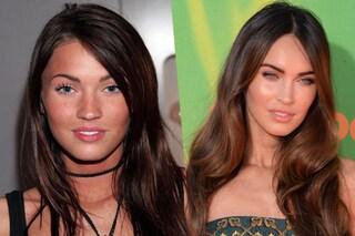 Star e chirurgia: chi ha rifatto cosa? Le foto del prima e dopo (FOTO)