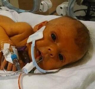 """Il commovente appello di un papà che ha perso la sua bimba: """"Vorrei una foto di Sophia senza tubi"""""""