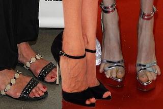 Difetti da star: 10 celebrities con i piedi brutti (FOTO)