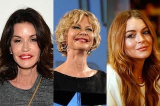 Le star che invecchiano male: ecco le traformazioni (FOTO)