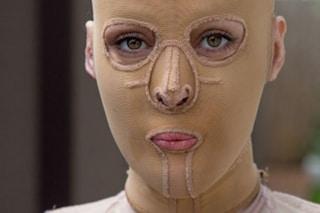 La donna senza volto, bruciata viva perchè troppo bella