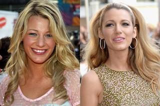 Naso rifatto: le star prima e dopo il ritocchino (FOTO)