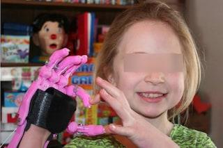 Nasce senza una mano e il suo papà costruisce una protesi per lei