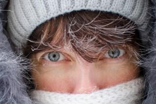 Come proteggere la pelle dal freddo: rimedi naturali e cosmetici