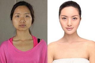 Trasformata dalla chirurgia plastica, non supera i controlli all'aeroporto (FOTO)
