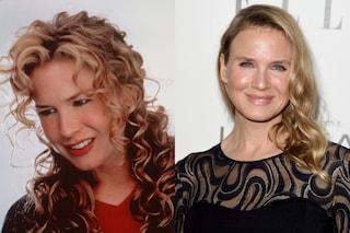 La chirurgia plastica che cambia i volti delle star, ecco il prima e dopo (FOTO)