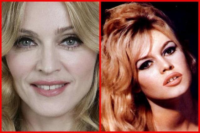 Quello che può sembrare un difetto diventa invece il valore aggiunto di una donna: il diastema, lo spazietto tra i denti che rende sexy e irresistibili le vip, da Brigitte Bardot a Madonna.