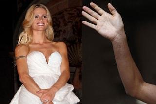 Michelle Hunziker e quella brutta cicatrice sul braccio da sposa (FOTO)