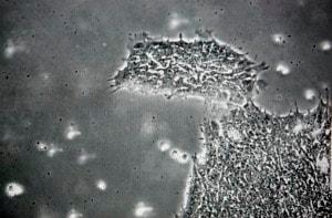 Cellule staminali: una risorsa anche per lo sviluppo di farmaci