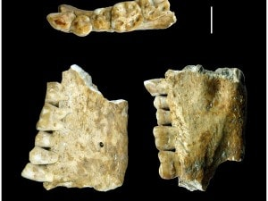 i dentisti del neolitico