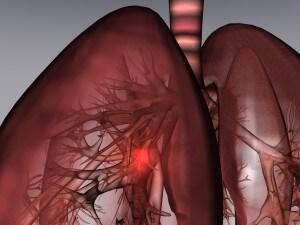 tumore_polmone