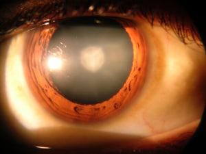 Una generazione di miopi a causa di smartphone, tv e tablet