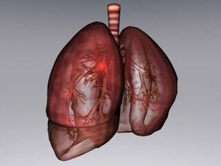 Il legame tra origine del tumore ed agenti chimici