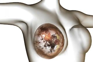 Cancro al seno, scoperti geni che predicono le metastasi: nuove speranze di cure personalizzate