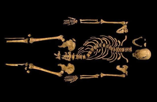 Lo scheletro rinvenuto evidenzia la spina dorsale fortemente scoliotica che caratterizzava il sovrano. Le ferite al cranio sono compatibili con i colpi ricevuti nella battaglia che gli fu fatale.