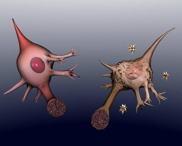Un neurone sano a confronto con un neurone con l'Alzheimer