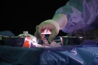 Primato italiano, asportato tumore all'esofago con un robot senza apertura del torace