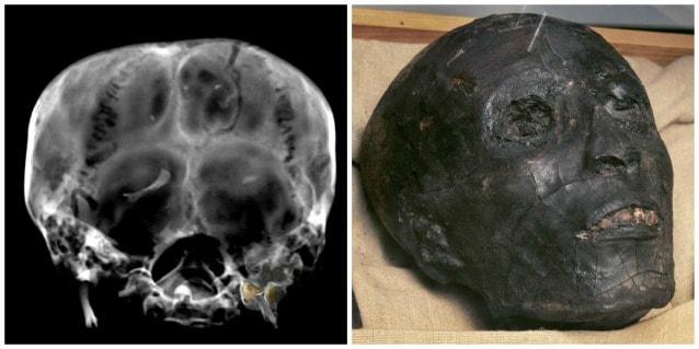 Tomografia computerizzata per una delle mummie più studiate della storia