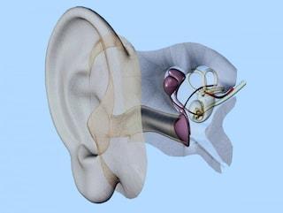 Un farmaco per recuperare l'udito perduto