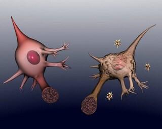 Gli anticorpi terapeutici che bloccano l'Alzheimer
