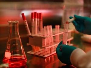 Polemiche nel mondo scientifico per la pubblicazione di uno studio, alcuni ricercatori olandesi avrebbero prodotto in laboratorio una variante ad altissima contagiosità del virus H5N1, meglio noto come quello dell'influenza aviaria.