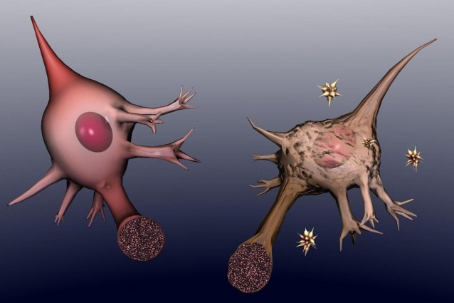 Per il momento gli scienziati invitano ad un cauto ottimismo dal momento che bisognerà ancora aspettare perché il farmaco possa essere testato sugli esseri umani, tuttavia sembrerebbe dimostrata l efficacia di una proteina, normalmente usata nella cura di alcune neoplasie, per ridurre i sintomi dell Alzheimer.