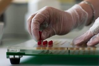 """Integratori alimentari ritirati dal mercato, il Ministero: """"Salgono a 21 i casi di epatite"""""""