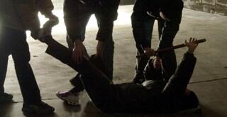 """Lucca, ballerino 19enne denuncia: """"Picchiato perché gay"""". Braccio rotto all'amica che l'ha difeso"""