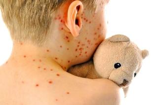 Epidemia di morbillo a New York: il sindaco rende obbligatorio il vaccino