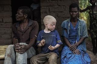 Choc in Tanzania, trafugati i cadaveri di bimbi albini: riti propiziatori per le elezioni