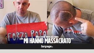Caso Luca Fanesi, il Gip archivia. Disse di essere stato picchiato e ridotto in coma dalla polizia