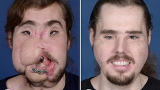L'incredibile trasformazione di Cam, si era sparato in faccia e ora ha un nuovo volto