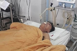 Il paziente sta morendo, i medici gli pompano 15 lattine di birra nello stomaco e lo salvano