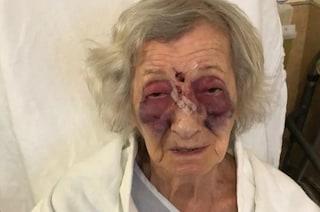 Canada: anziana sopravvissuta all'olocausto picchiata da un uomo su un bus