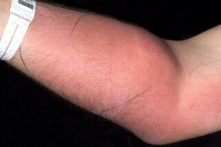 Per un anno e mezzo si inietta il proprio sperma per curare il mal di schiena: ricoverato