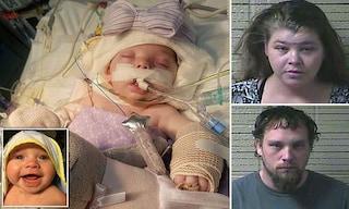 """Bimba di 3 mesi con fratture e danni al cervello: """"Maltrattata e trascurata dai genitori"""""""