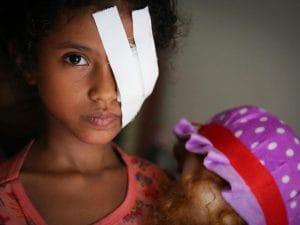 Razan, una bimba yemenita di 8 anni ferita ad un occhio durante un bombardamento a Hodeida (Save the Children)