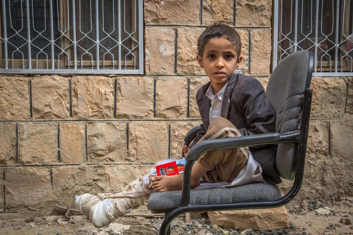 Ismail stava andando a scuola quando l'autobus sul quale viaggiava è stato colpito da una bomba sganciata da un aereo della Coalizione saudita (Save the Children)