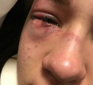 Bolzano, 15enne picchiata a scuola e ferita a un occhio: il padre mostra la foto su Facebook