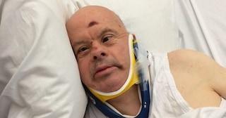 """Giuseppe muore: """"lasciato senza cibo per 10 giorni in ospedale"""". Aveva la sindrome di down"""