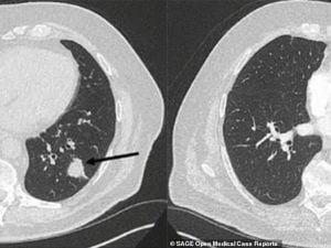 La riduzione della massa tumorale