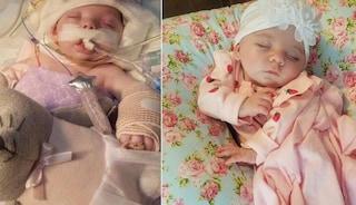 """Addilyn, la bimba ridotta in fin di vita dal padre, lascia l'ospedale dopo 2 mesi: """"È un miracolo"""""""