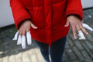 """Attacco razzista al luna park: le """"amiche"""" bulle le strappano le unghie, ha solo 13 anni"""