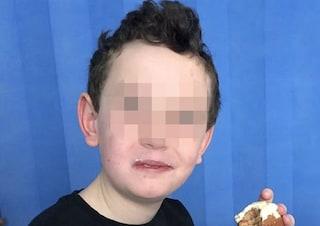 """Pensano che abbia un occhio pigro ma è un tumore al cervello: """"Gli restano pochi mesi di vita"""""""