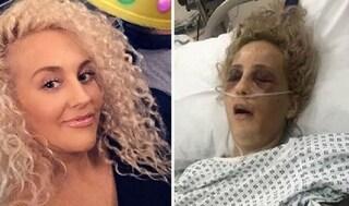 L'ex irrompe in casa dalla finestra e la aggredisce nel sonno, 23enne in fin di vita