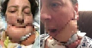 """Ha tre tumori che le impediscono di mangiare e parlare: """"Resto forte per la mia famiglia"""""""