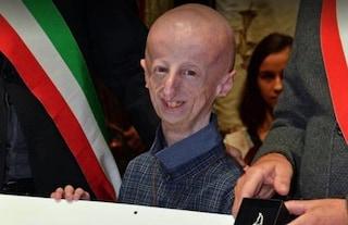Sammy Basso cavaliere della Repubblica, nuovo traguardo per il ragazzo affetto da Progeria